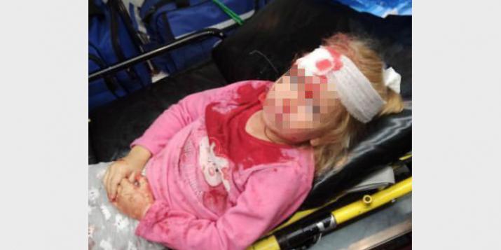 «Мама, на нас напали бандиты?» В Гродно после нападения ОМОНа на машину пострадала 5-летняя девочка