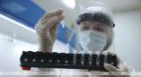 В Брестской области с конца августа заболеваемость коронавирусом выросла более чем втрое